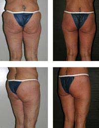 Buttock Implants Buttock Augmentation